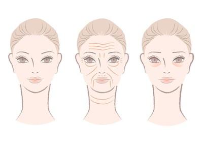 加齢による皮膚のたるみ